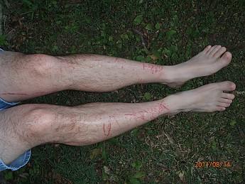 Summer-6-legs-005.jpg