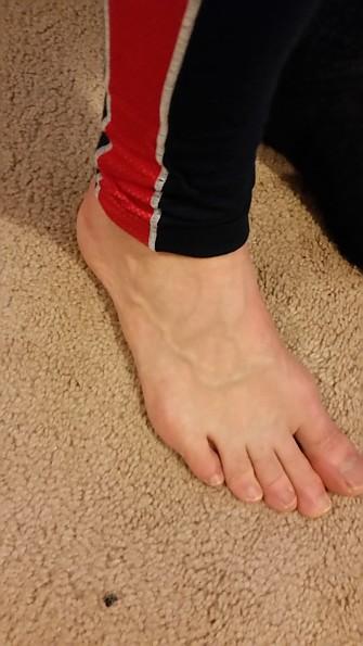 HHBottom-Ankle.jpg
